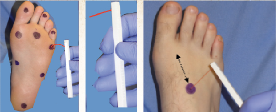 Figures 1-3. Sensation testing sites for Semmes-Weinstein monofilament (SWM) protocol using the 5.07-gauge, 10 g monofilament. Typical SWM testing sites are illustrated above. Testing the feet of patients with diabetes for loss of sensation can help clinicians evaluate if a patient is at a high risk for developing wounds and ulcers as well as potentially needing a lower extremity amputation. (Photos reprinted courtesy of Wounds)