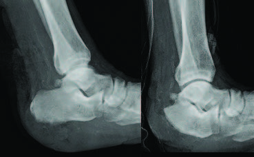 The vertical contour calcanectomy, as one can see with these radiographic images, is the treatment of choice for patients with calcaneal osteomyelitis as the aggressive removal of bone paired with separation of the tendo-Achilles from its insertion helps to decrease calcaneal fracture risk.