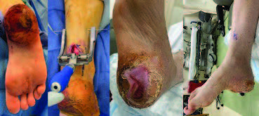 In these photos, one can see various stages of Achilles repair just distal to the myotendinous junction with percutaneous insertion of the sutures and suture anchors into the calcaneus. This method allows for the native tendon to regain function in a shortened and imbricated fashion, alleviating the existing calcaneal gait.