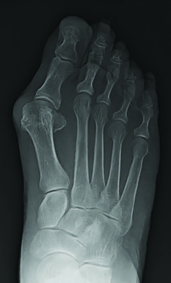 This radiographic image shows an increased first intermetatarsal angle. When studying the cause of bunions, one should look at the forces that cause the first metatarsal head to move away from the second metatarsal head and look at the anatomical structures that can apply forces resisting that motion. (Photo courtesy of Laura Bohman, DPM and Adam Landsman, DPM)