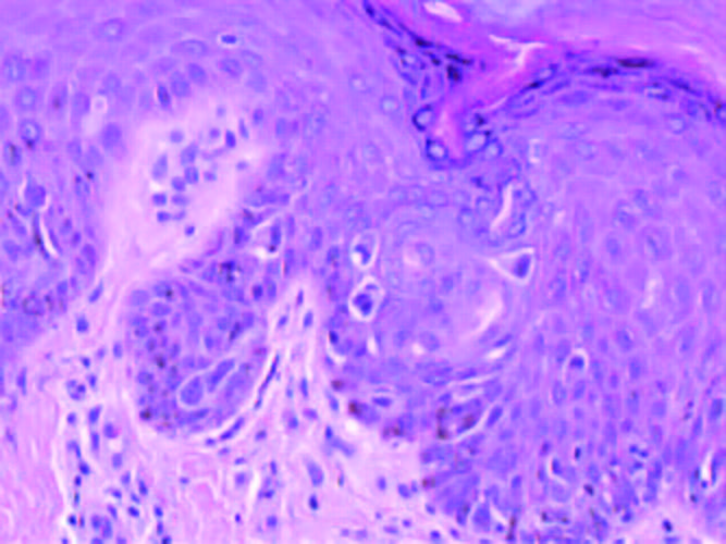 Here one can see a hematoxylin and eosin-stained histologic image of the aforementioned patient's lesion, indicating melanoma.