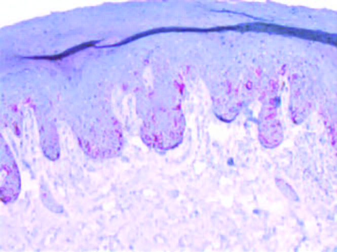This histology image shows a Melan-A-stained slide consistent with melanoma in the aforementioned patient.