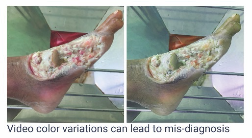 "Figure 1. Wound care is a ""visually demanding"" specialty and video alone cannot meet the clinical requirements. Different lighting conditions change color bias leading to incorrect assessments from too red, suggesting an improvement to pale suggestion ischemia, to green hues suggesting Pseudomonas infection."