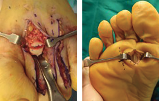 In regard to plantar plate repair, the dorsal approach (left) typically requires a metatarsal osteotomy to gain access, which is often desirable in cases involving excessive metatarsal length. The plantar approach (right) is often best if there is no need for metatarsal osteotomy or if reconstruction requires a more direct plantar approach.