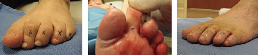 Here one can see photos before (left), during (middle) and after a minimally invasive flexor tenotomy along with interphalangeal joint capsulotomy for flexible hammertoe contracture (right). This is particularly useful in patients with hammertoes associated with stroke contracture or other neurologic conditions. This office-based procedure can be definitive but also does not burn any bridges if revision becomes necessary in the future.