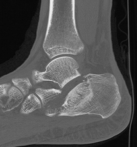In this computed tomography (CT) image, one can see a displaced intraarticular calcaneal fracture prior to surgical intervention.