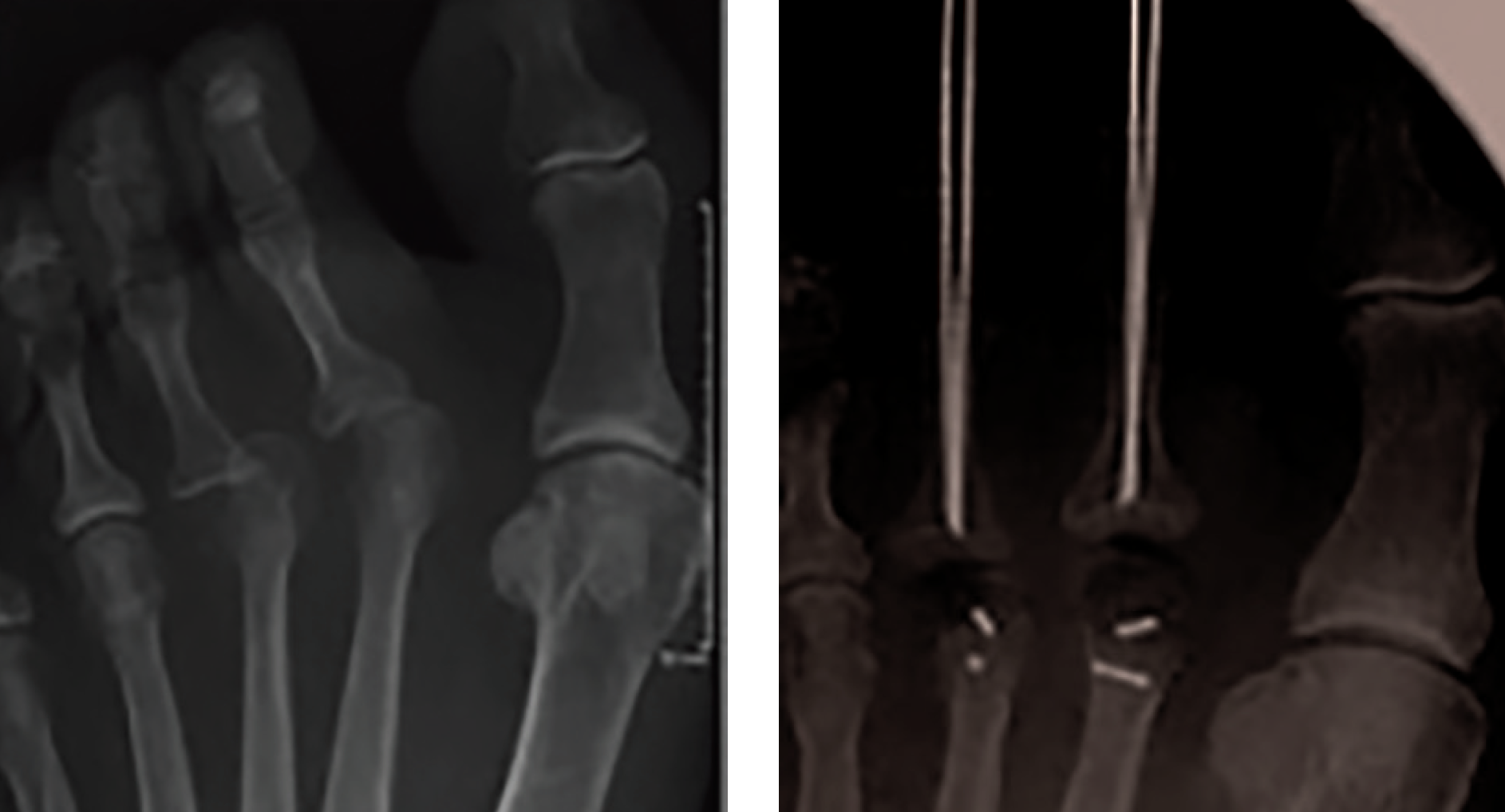 These radiographic images (from left to right) show pre- and postoperative images of proximal interphalangeal fusion, shortening metatarsal osteotomies and soft tissue reconstruction involving lesser MPJ dislocation. Maintaining normal digital alignment in the short-term and long-term remains a challenge with hammertoe repair.