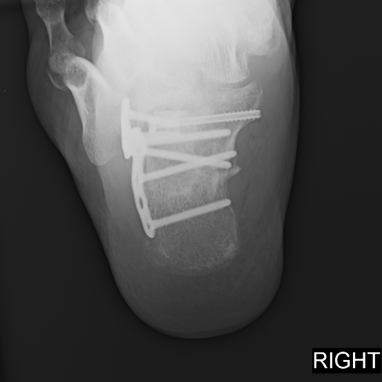 Here one can see a radiographic image of a displaced intraarticular calcaneal fracture after surgical intervention.