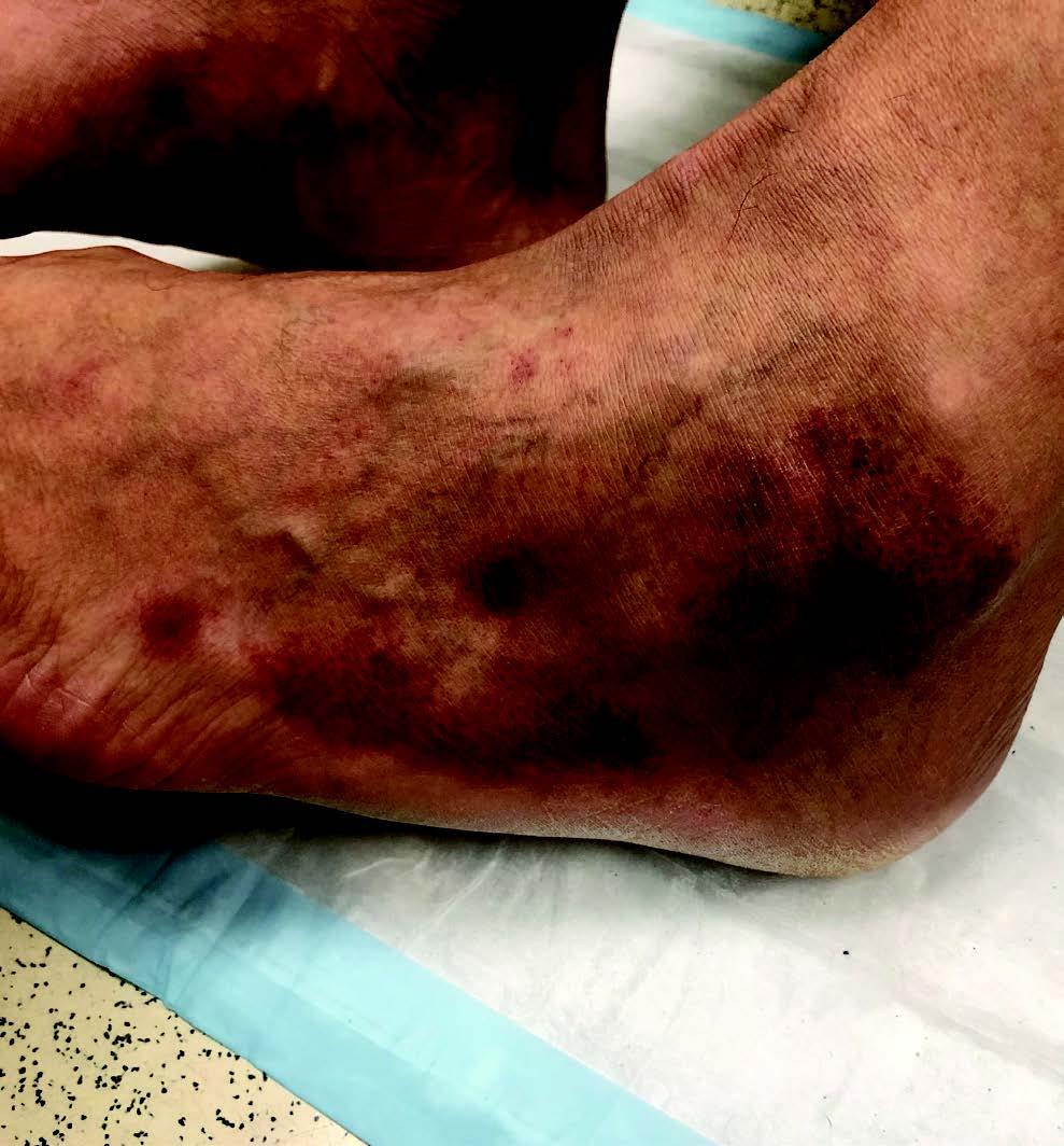 This photo also shows similar lesions on the left lateral ankle and foot. The patient in question had palpable dorsalis pedis and posterior tibial pulses.