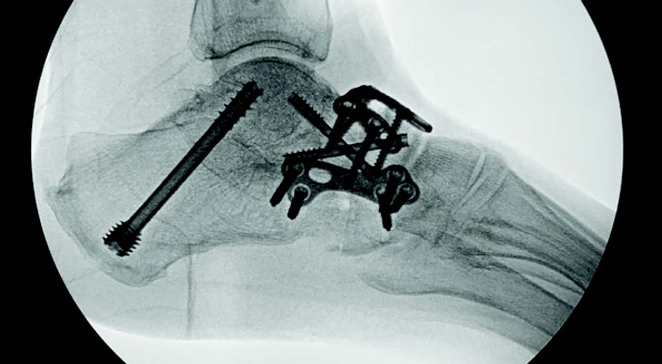 In this radiographic image, one can see a triple arthrodesis using the Arsenal Foot Plating System and associated screws. This plating system reportedly offers a variety of specialized fixation offerings for the forefoot, midfoot and rearfoot.