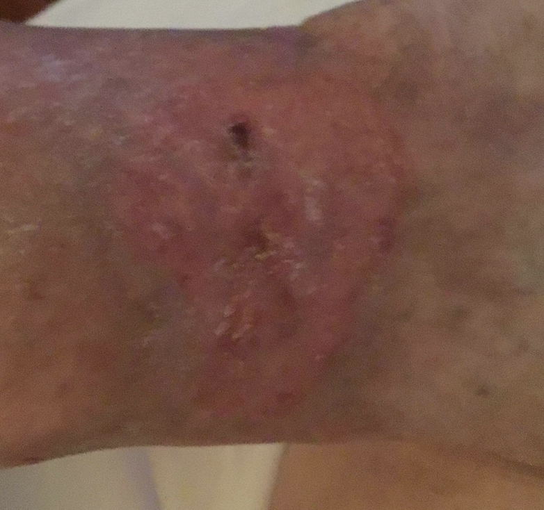 Here one can see the same ankle wound in the photo above, healed three months after the first MyOwn Skin application.