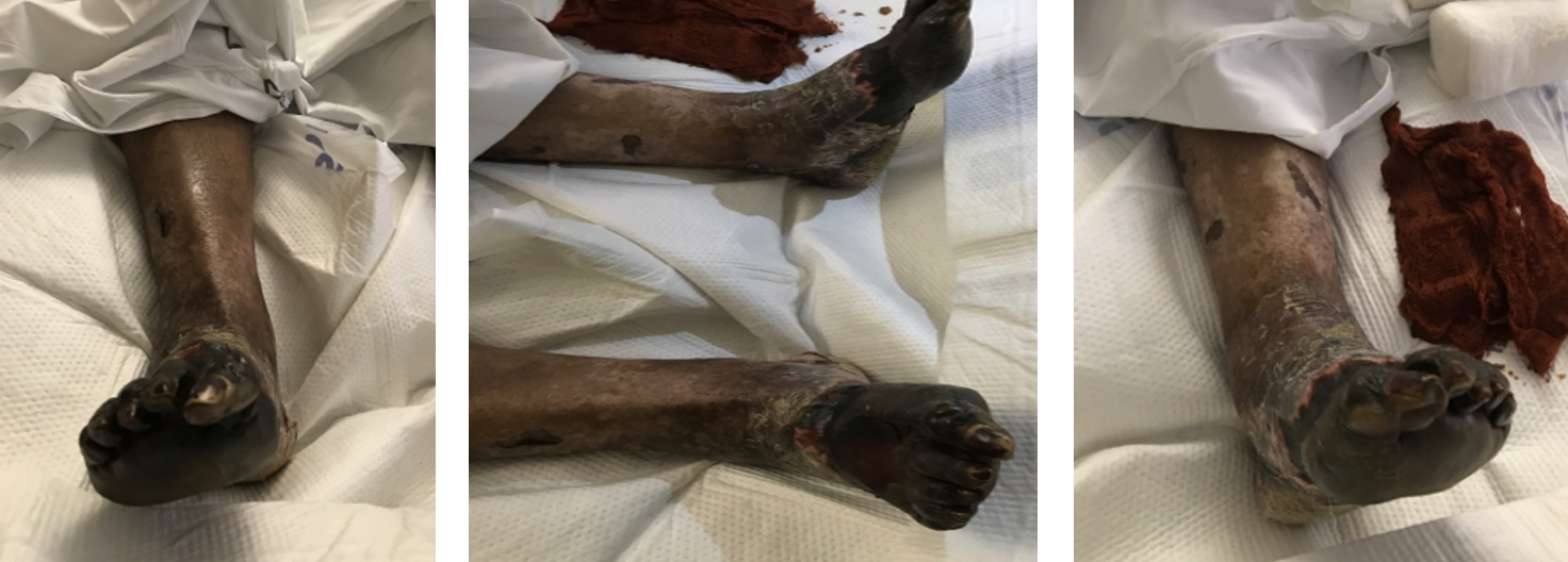 Here one can see photos from the initial consultation in December 2019 with bilateral extensive forefoot and midfoot dry/stable gangrene with full-thickness necrosis and clinical signs of infection.