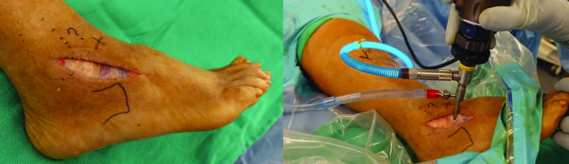 After making the modified sinus tarsi incision, the surgeon carries dissection down to the extensor retinaculum as one can see in the photo on the left. After achieving adequate exposure, the surgeon can directly make the STJ arthroscopic ports through the extensor retinaculum as shown in the photo on the right.