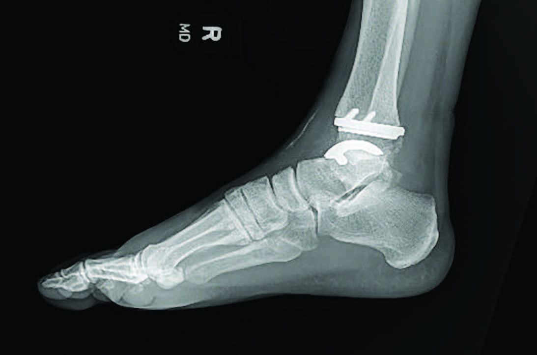 Fourth-generation ankle implants, as shown in this radiographic image, have contributed to advancements in implant design, simplicity and technique. These factors along with increased surgeon comfort have begun to push the boundaries of what is possible with total ankle arthroplasty.