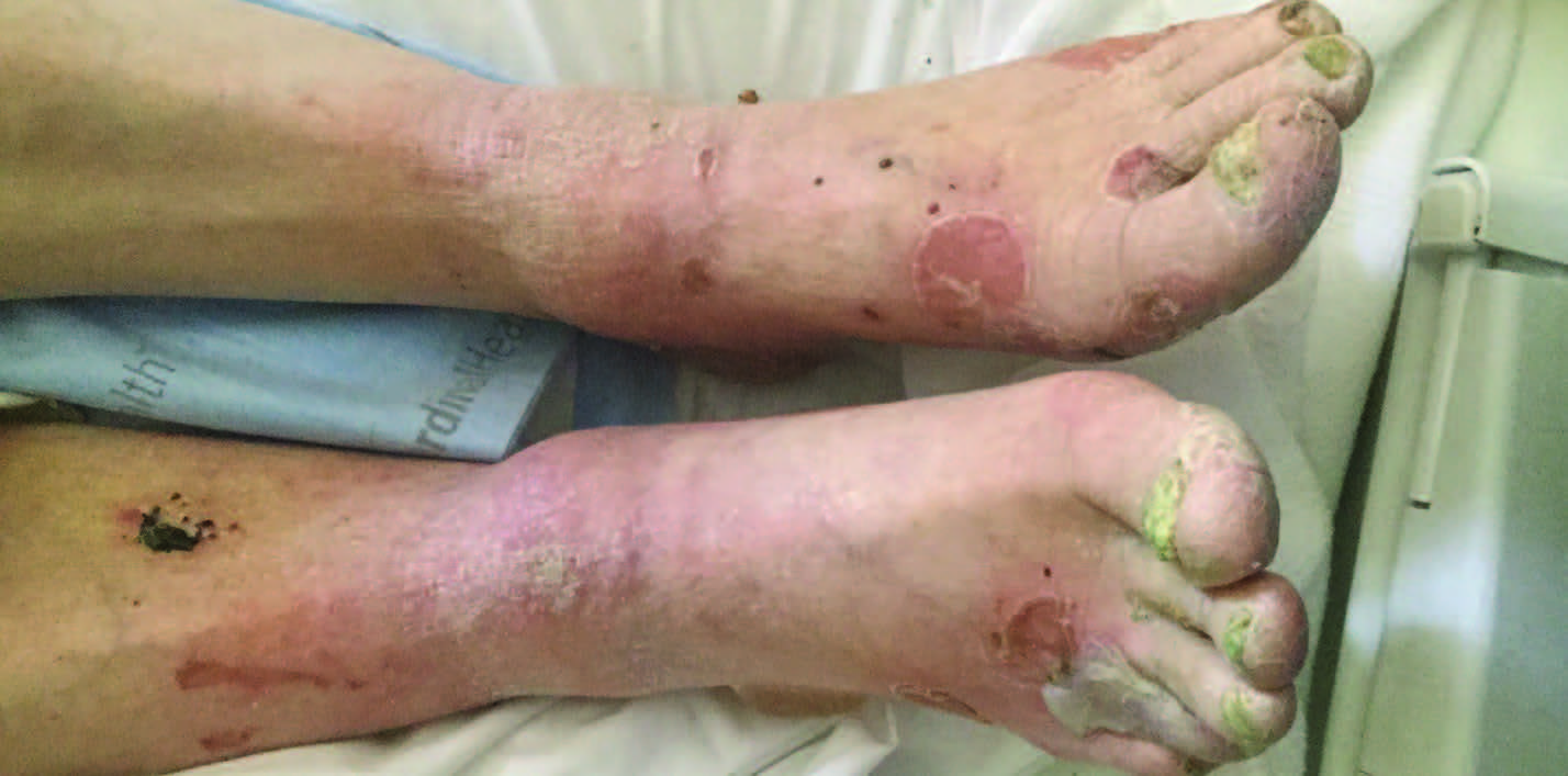 Here are mutiple bullae on the bilateral lower extremities. The initial thought was that the bullae were caused by edema but a biopsy revealed bullous pemphigoid.