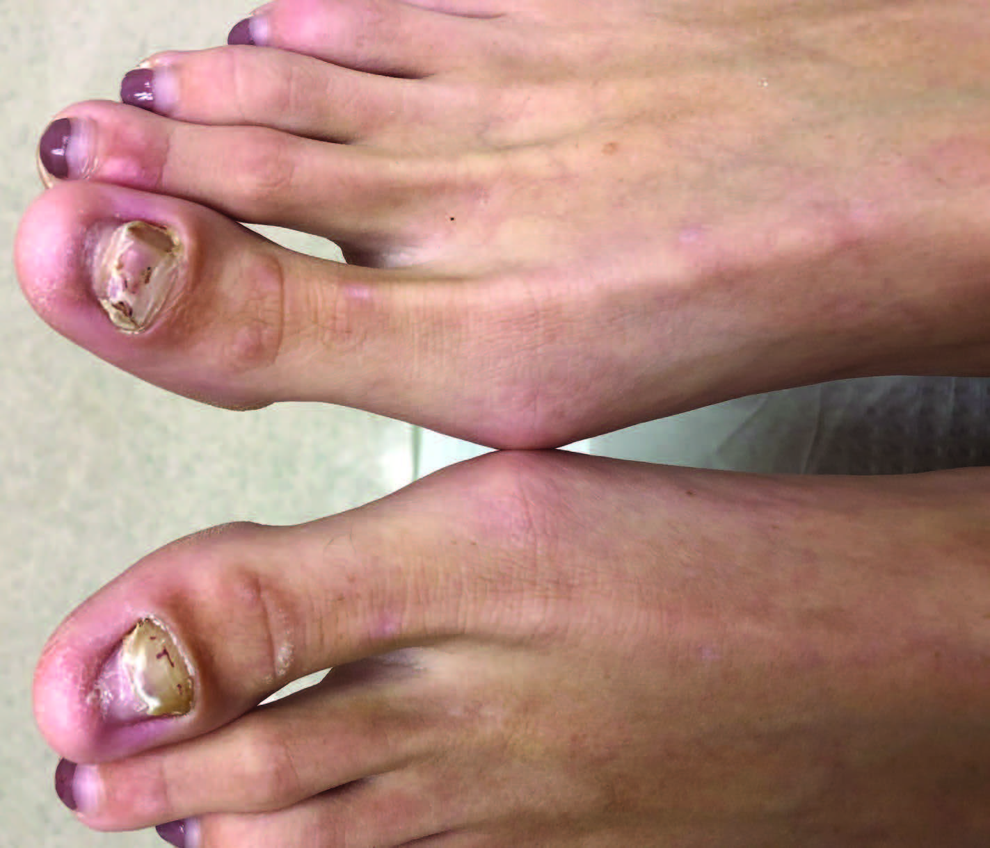 Here one can see disappearing nail bed of the hallux bilaterally. Differentiating between onychomycotic and true onycholytic nail disorders is difficult for even the most seasoned practitioners. This can create issues when it comes to proper diagnosis and treatment plans.