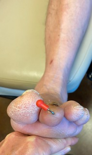 This photograph depicts a clinical view at four weeks postoperative. With loading the foot, note there is mild overcorrection.