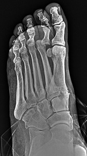 This oblique radiographic image reveals a dorsally dislocated second toe.