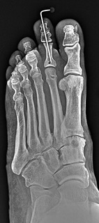 This image is an oblique radiograph taken one week postoperative. Note the bone tunnels in the proximal phalanx and second metatarsal neck.