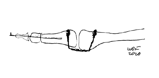 This illustration shows the positioning of a synthetic graft to create a new plantar plate.