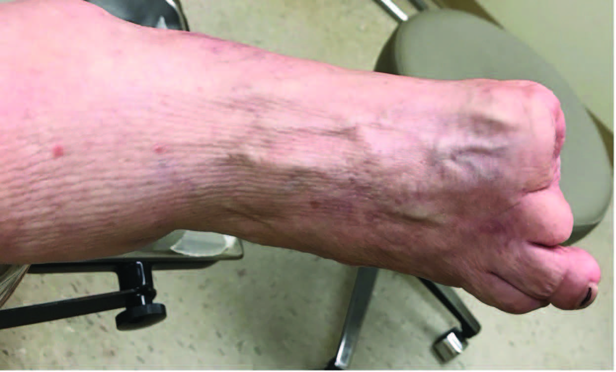 In this photo, one can see a foot that was subject to multiple toe amputations and required a toe filler for use in shoe gear. For lesser toe amputations, a toe filler is not typically necessary but clinicians should use their best judgement in unusual circumstances.