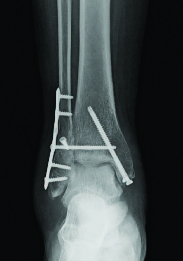 This AP radiograph demonstrates open reduction internal fixation of a bimalleolar ankle fracture and screw fixation of the syndesmosis. Surgeons typically use fully-threaded cortical screws for syndesmotic repair approximately two to four cm above the ankle joint. (Photo courtesy of Jonathan Hook, DPM, MHA, Frank Narcisi, DPM, and Curt Martini, DPM)