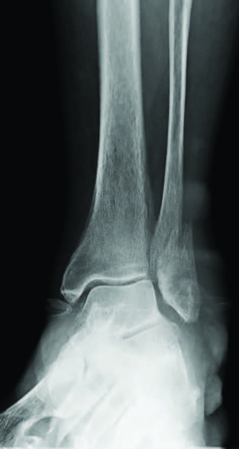 Here one can see a preoperative mortise radiographic view of a moderately displaced unimalleolar ankle fracture. Fibular malreduction (whether laterally displaced, rotated or malaligned axially) increases pressure across the ankle joint, contributing to post-traumatic osteoarthritis. (Photo courtesy of Mark Prissel, DPM)