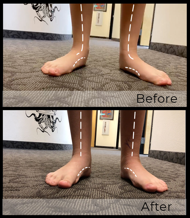 Here one can see an anterior view of foot position before and after EOTTS.