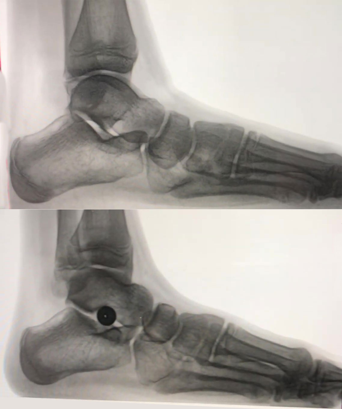 These radiographic images show lateral views of foot position before (top) and after (bottom) EOTTS.
