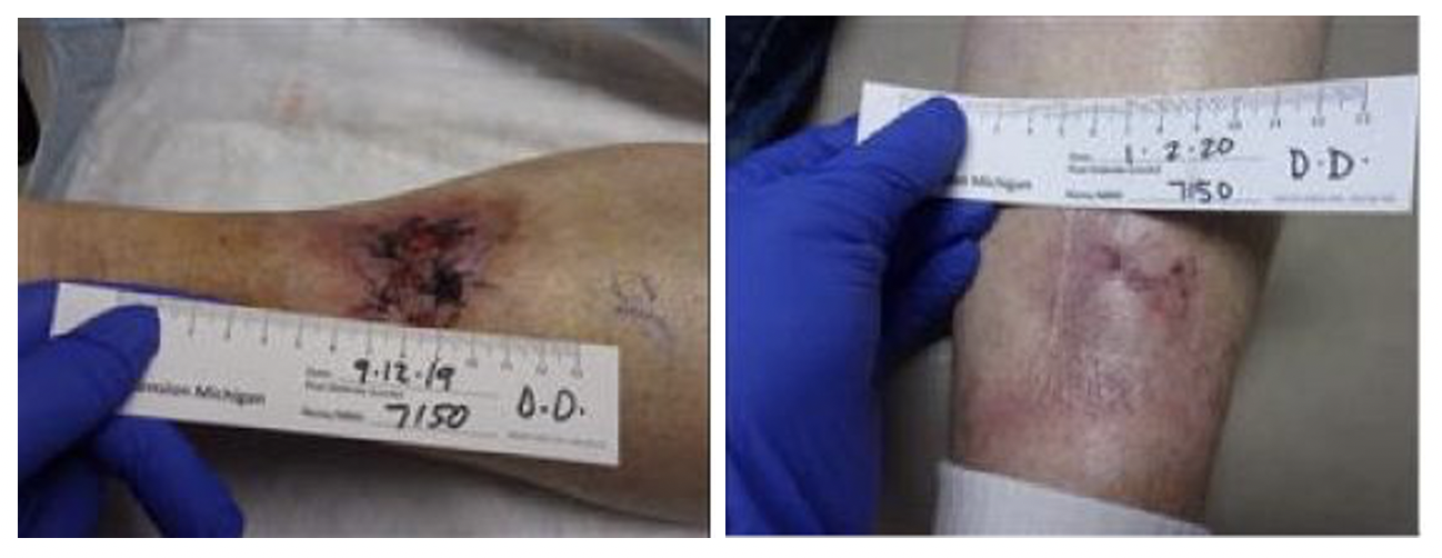 B.	In the photo on the left, one can see necrosis of the bilobed flap two weeks after surgery and the photo on the right shows the healed ulceration four months after surgery.