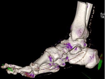 This dual-energy computerized tomography image obtained during initial admission to the hospital unit with three-dimensional rendering demonstrates urate deposition consistent with gout (green) to the posterior right heel.