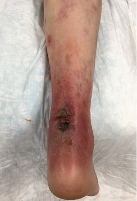This photo shows the clinical appearance of the posterior right heel on readmission to the hospital with surrounding erythema and open necrotic ulceration.