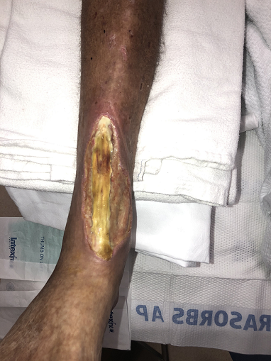 Figure 1. Pre-debridement. Exposed tibialis anterior with concerns for pyoderma gangrenosum. (Photo courtesy of Efthymios Gkotsoulias, DPM)