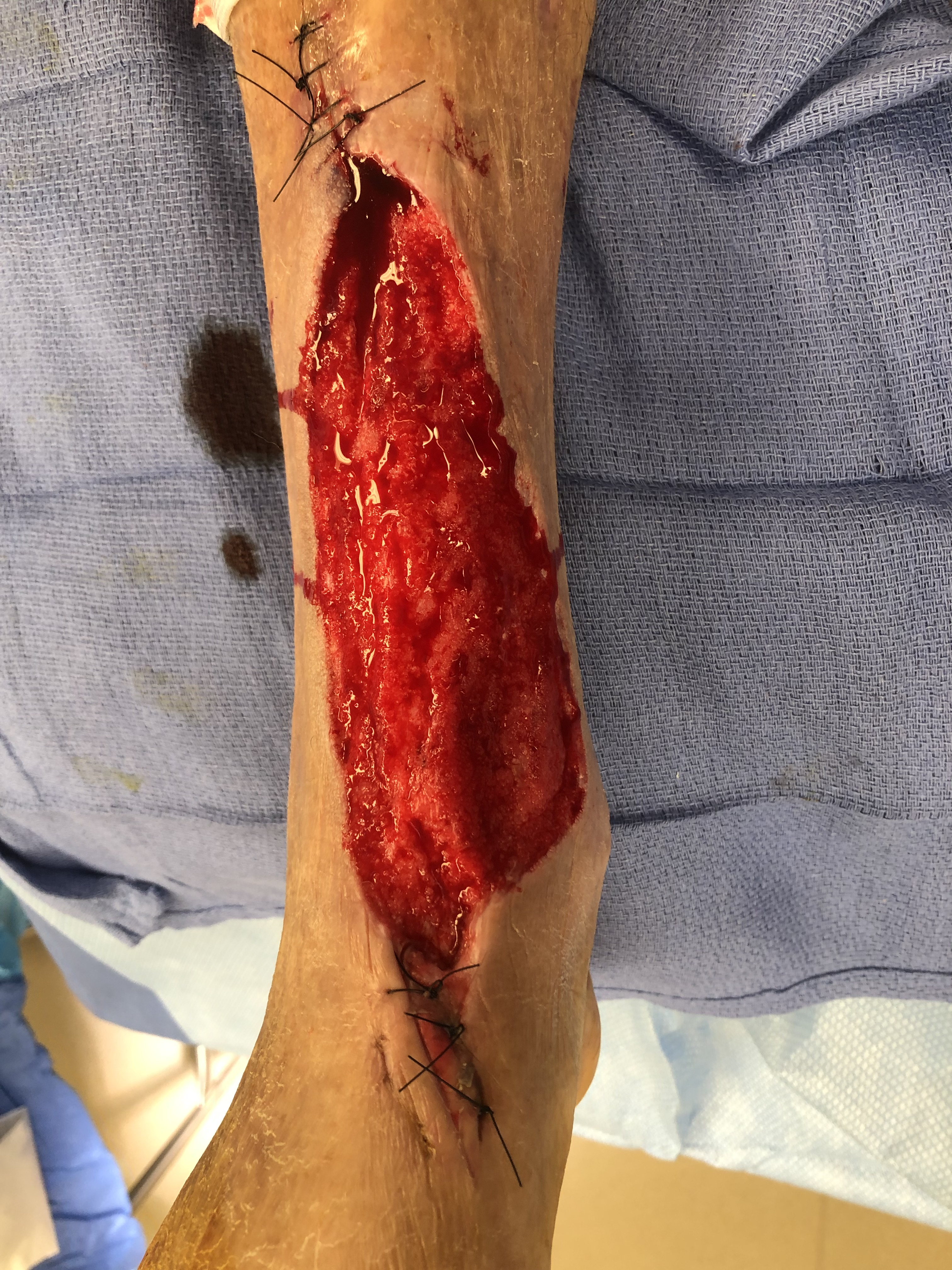 Figure 3A. Status-post debridement and following application of negative pressure wound therapy. (Photo courtesy of Efthymios Gkotsoulias, DPM)