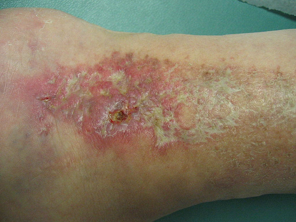 Stasis Dermatitis and Leg Ulcers - American Academy of ...