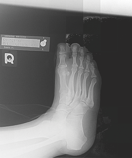 Managing Stress Fractures In Athletes Podiatry Today