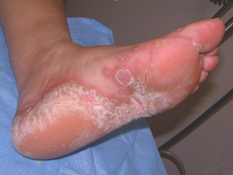Treating Fungal Infections In Patients With Wounds Podiatry Today