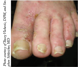 A Guide To Dry Skin Disorders In The