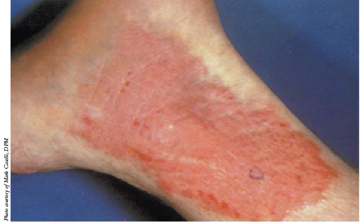 A Guide To Dry Skin Disorders In The Lower Extremity Podiatry Today