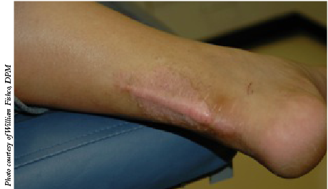 Current Concepts In Treating Hypertrophic Scars And Keloids Podiatry Today