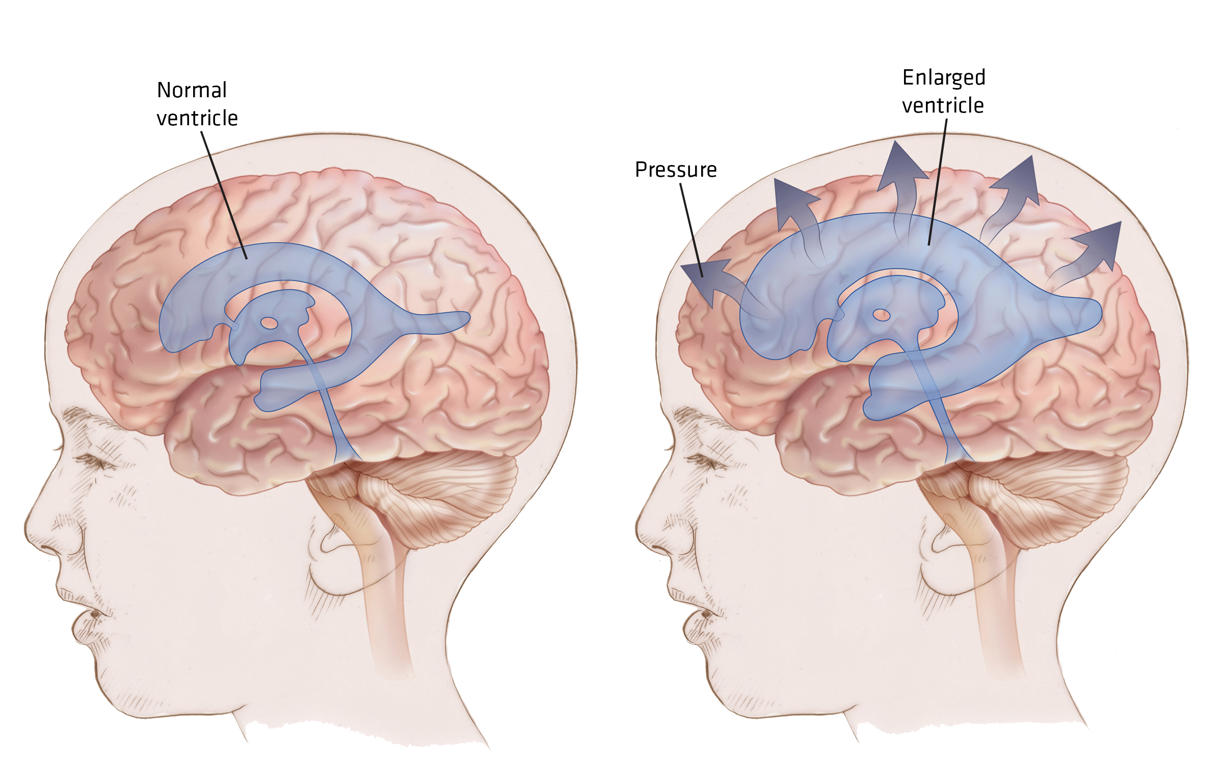 Seizing the Moment: Can Hydrocephalus Cause a Seizure? | EMS World