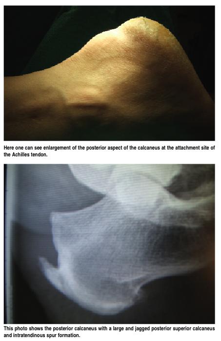 Retrocalcaneal Heel Spur Surgery