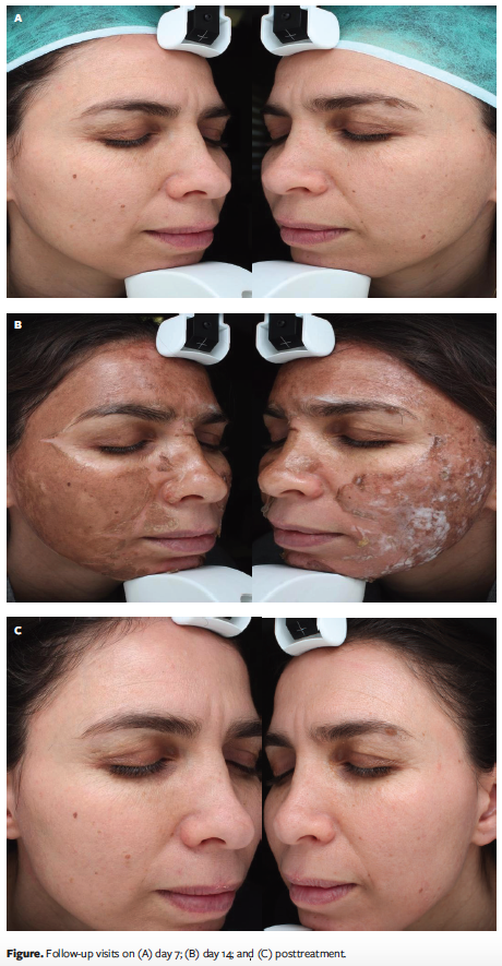 Efficacy Of Silver Based Gel Compared With Fusidic Acid Cream In Topical Treatment Following Trichloroacetic Acid Facial Skin Peeling A Pilot Study Wounds Research