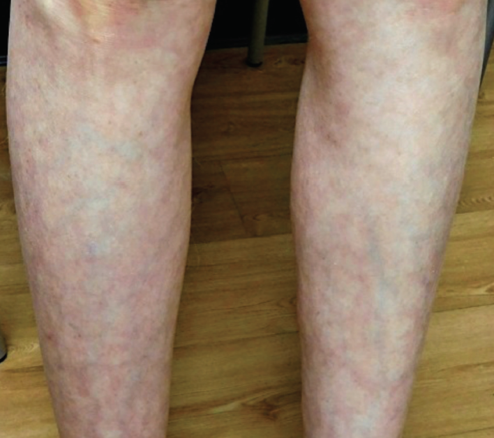 What Is the Cause of This Patient's Leg Discoloration ...