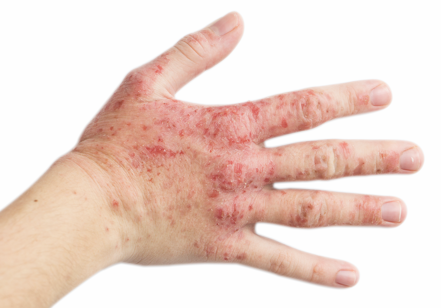 Is Hand Eczema More Common With AD? | The Dermatologist