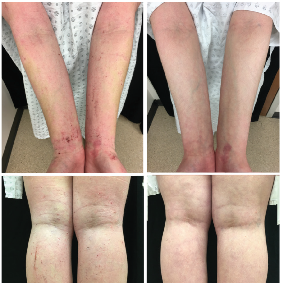 treatment with Jak inhibitor before and after clinical photos