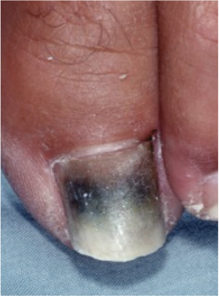 Board Review October 2019 discolored nail