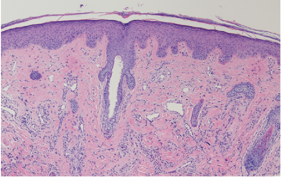 Dermatopathologist October 2019 Figure 2