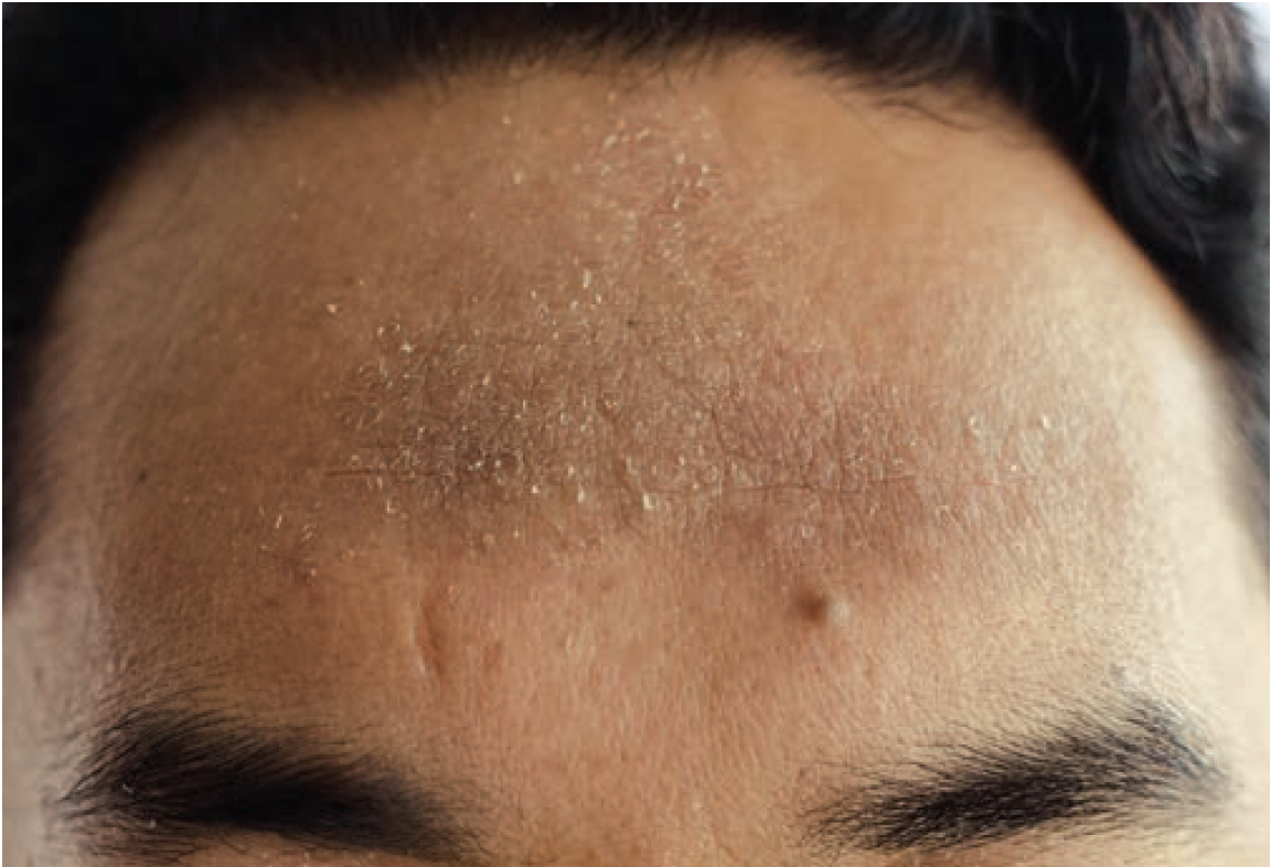 Atopic dermatitis of the forehead in skin of color