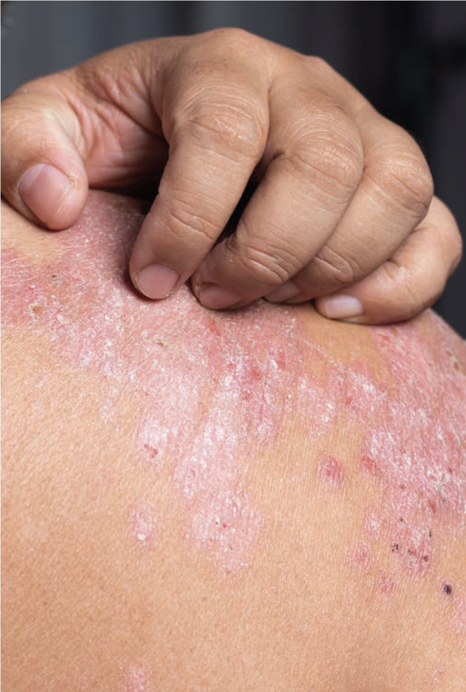 Psoriasis in white patient